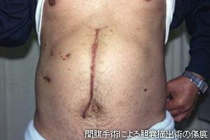 胆嚢 炎 手術